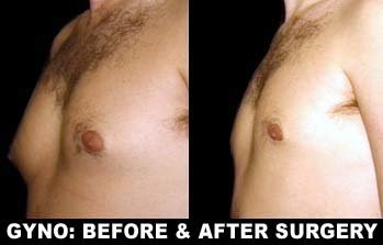 Nolvadex before and after gynecomastia