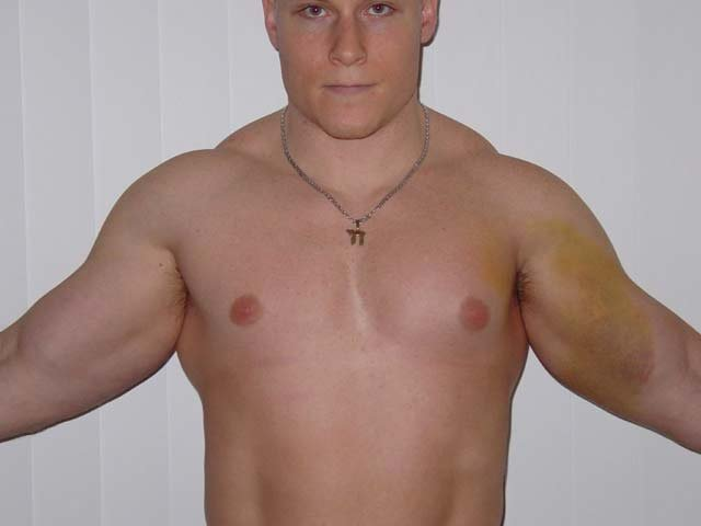 muscle wasting after steroid injection