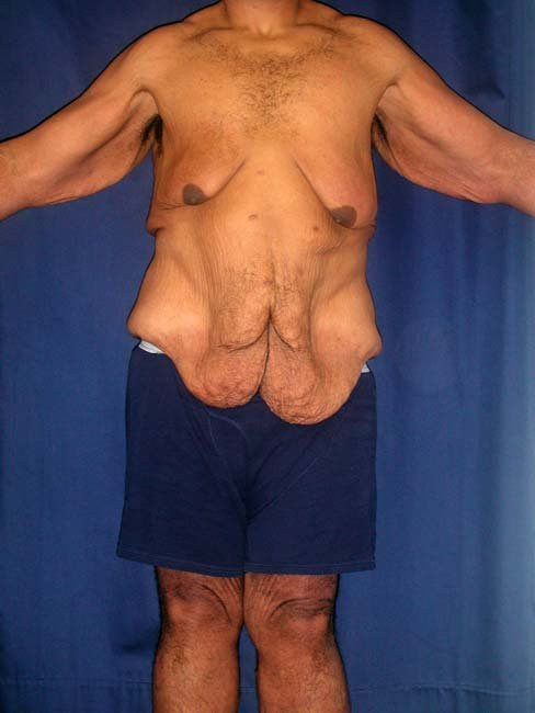 bodybuilders before and after. Bodybuilders Before And After.