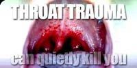 Throat Trauma Can Quietly Kill You.