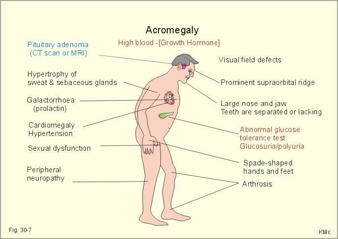 severe acne steroids