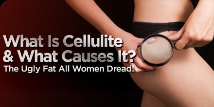 http://www.bodybuilding.com/fun/images/2009/preventing_cellulite.jpg