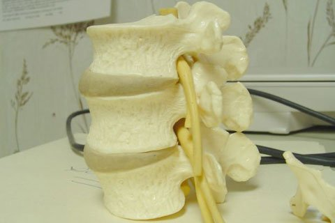 Uneven Weight On Spinal Discs Can Lead To Bulging, Herniated Or Even A Ruptured Disc.