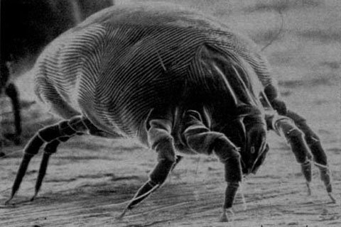 Wash Your Bedding And Towels In Hot Water To Kill Dust Mites At Least Once A Week.