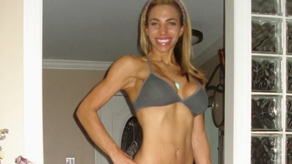 Now that she's cut, Nicole doesn't need to go under the knife.