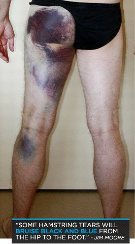 Anatomy Of An Injury: Hamstring Pulls And Tears