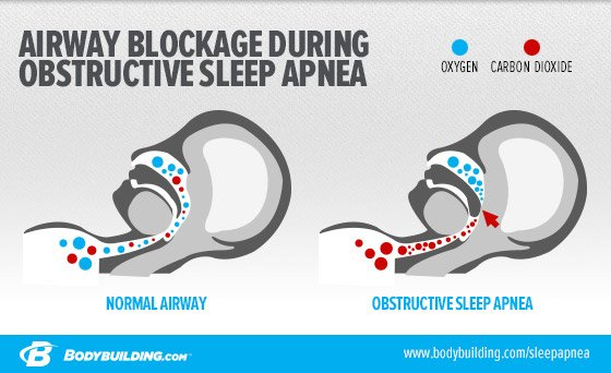 sleep apnea obstructive airway  how is sleep apnea prevention