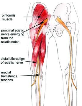 Sciatic Nerve Injury Caused By Injection Relief