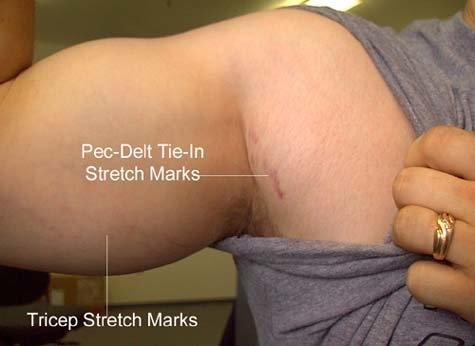 bodybuildingcom stretchmark maintenance Alleviating Bodybuilding Stretch Marks 475x346