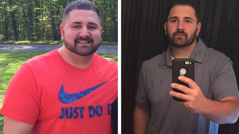 Patrick Lost Nearly 70 Pounds In Hopes Of Healing His Back