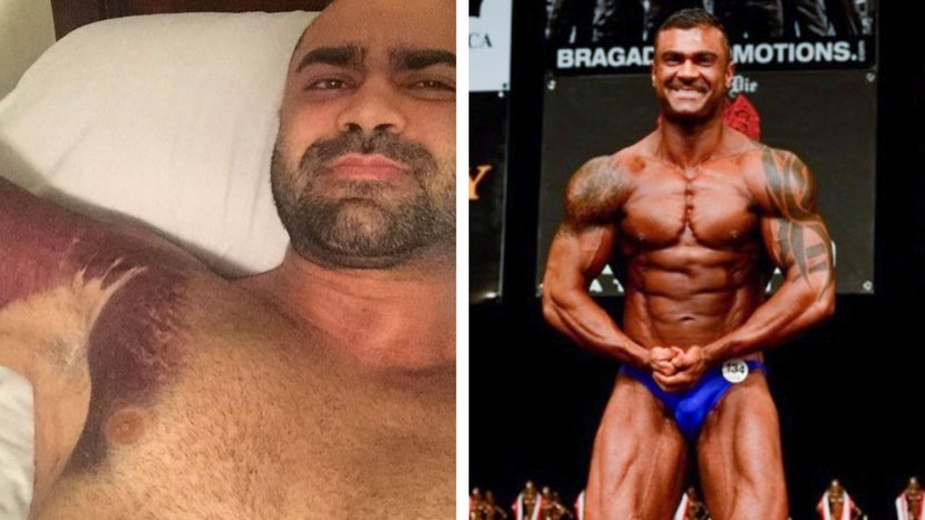 When Getting Swole Took Its Toll, Amir Khounani Bounced Back
