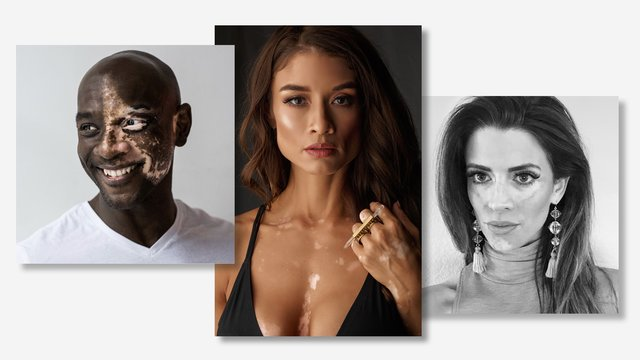 How 3 Health and Wellness Pros Have Thrived with Vitiligo