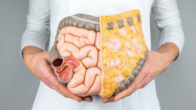 4 Keys to Supporting Gut Health