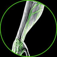 Forearm X-Ray
